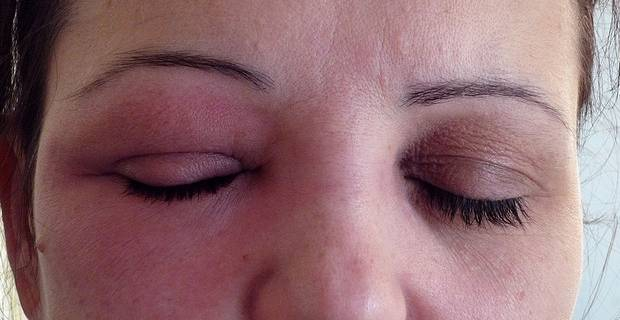 maquillage yeux allergiques